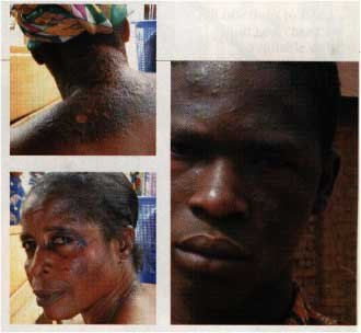 THIS SOUTH AFRICAN MAN AND WOMAN ARE REGRETTING USING BLEACHING CREAMS NOW!